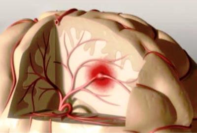 профилактика и лечение начальных проявлений недостаточности мозгового кровообращения инсульта в санатории Лесники